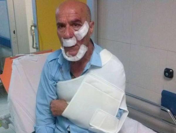 Roma: autista del bus picchiato, rintracciati e denunciati gli aggressori