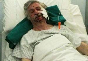 Brescia: pennarello esplosivo nella biblioteca di Rezzato, un anziano perde due dita