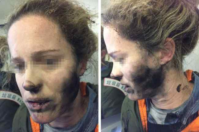 Cuffie wireless prendono fuoco, ragazza ustionata sul volo Pechino-Melbourne