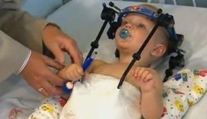 Australia, bambino di 16 mesi decapitato in un incidente: i medici gli riattaccano la testa