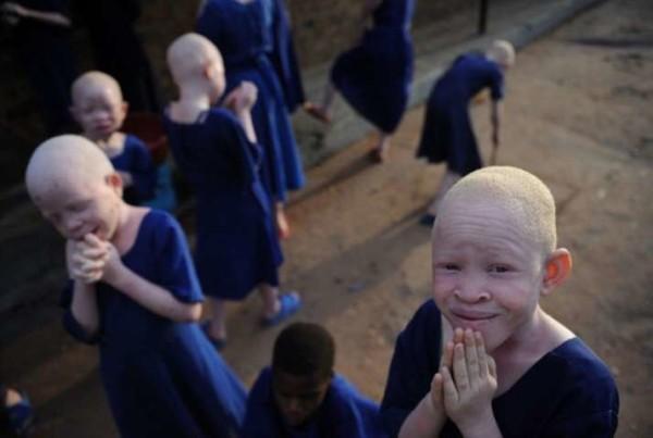 Africa, il dramma di nascere albino: violenze, maledizioni e corpi smembrati per pozioni magiche