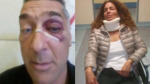 Torino-Juve Pulcini, botte e insulti razzisti verso la madre di colore di uno dei ragazzi
