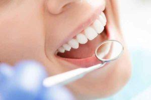 Odontoiatria: quali criteri valutare nella scelta di un dentista a Bari